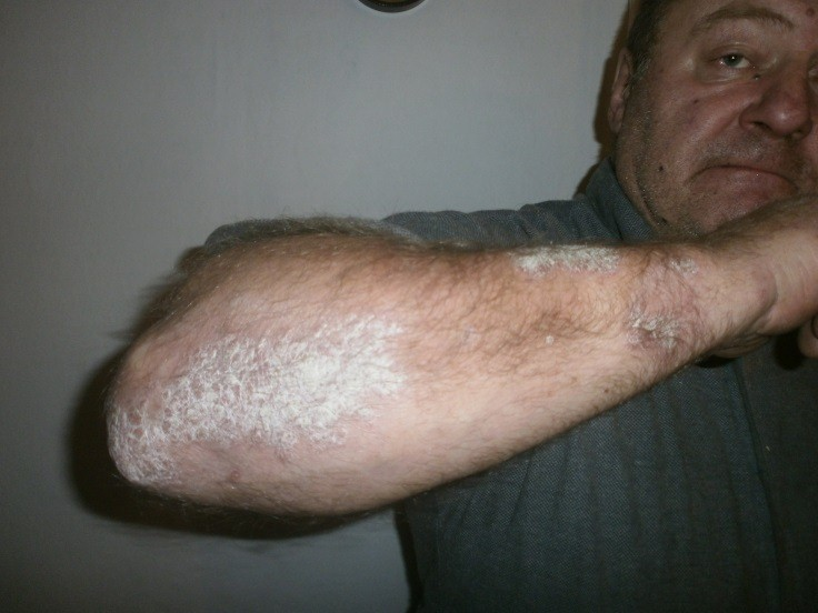 a pikkelysömör kezelhető a sinophlan kenőccsel pikkelysömör vagy pityriasis versicolor kezelés