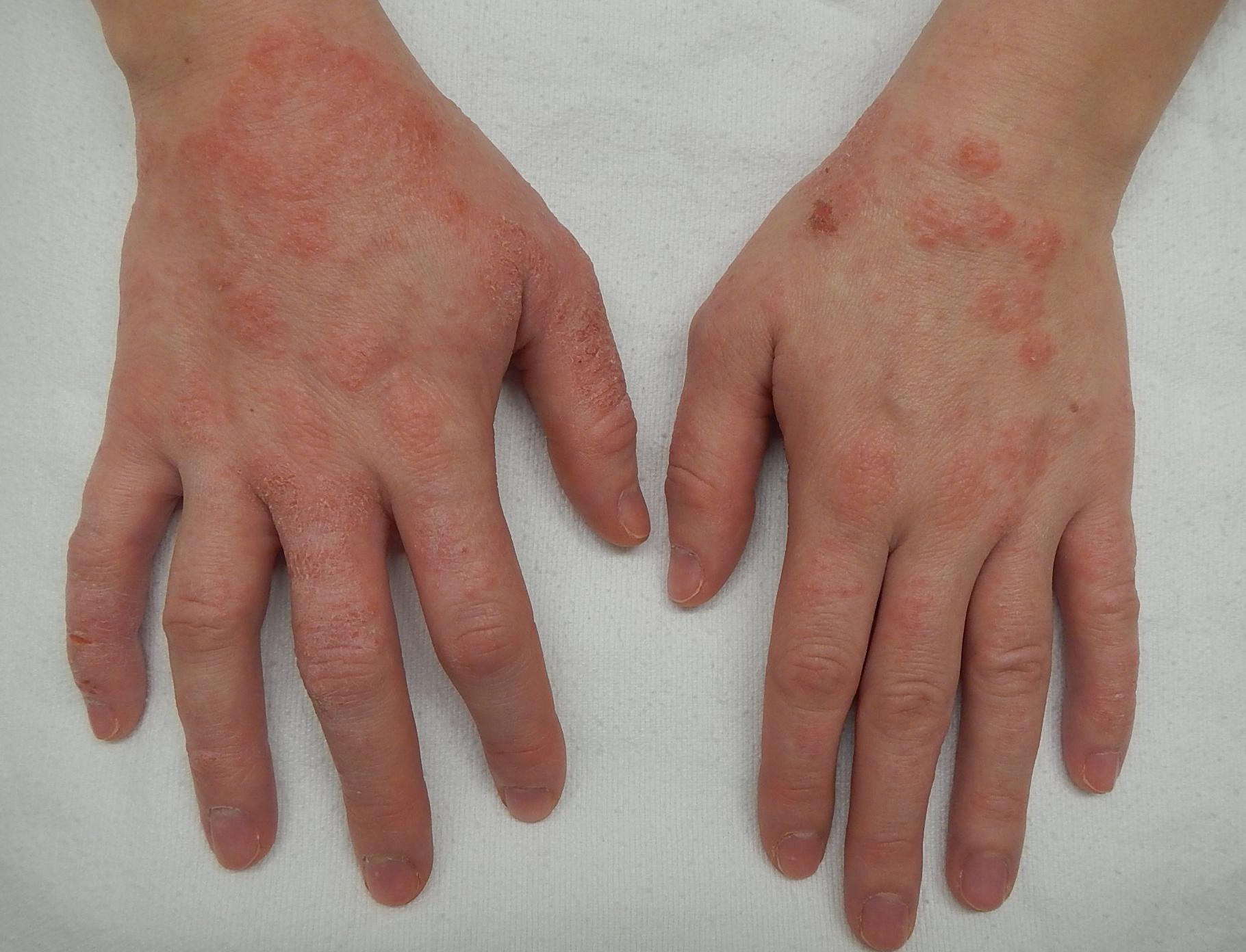 vörös foltok a testen viszketnek, hogy a kezek duzzadnak
