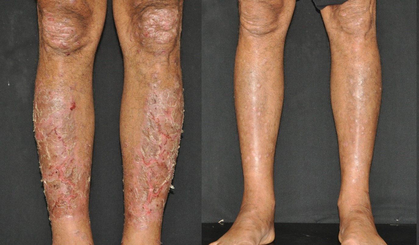 hatékony pikkelysömör viasz vörös pikkelyes foltok a testen viszketés kezelés fotó