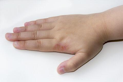 hólyagokkal és vörös foltokkal borított kezek