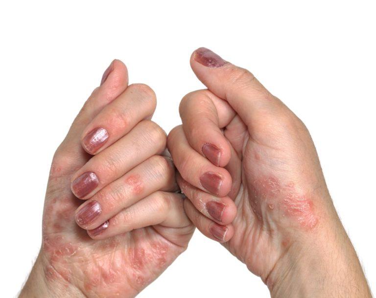 pikkelysömör kezelése a tenyéren népi gyógymódokkal a lábán egy piros folt fáj és duzzad