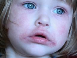 Piros pöttyök a száj körül, milyen krém segíthet? - Bőrbetegségek