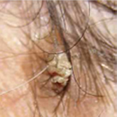 a fejbőrön lévő vörös foltok okai HIV-tünetek a bőrön vörös foltok formájában