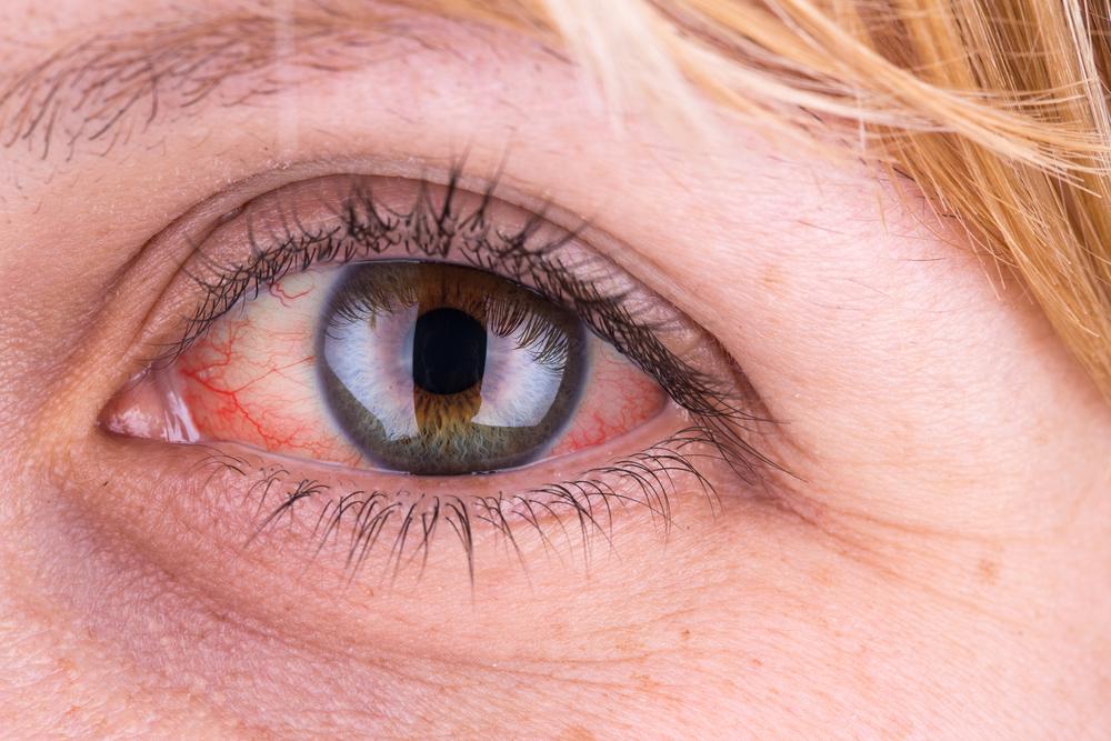 vörös foltok az arcon fényképpel és leírással a szem alatt a vörös folt duzzadt és viszket