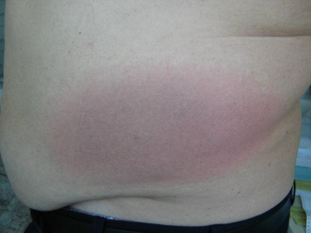 vörös folt a gyomorban, hogyan kell kezelni)