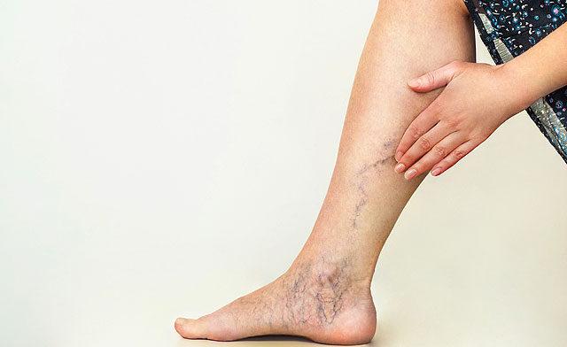 vörös folt a láb tünetein és kezelésén