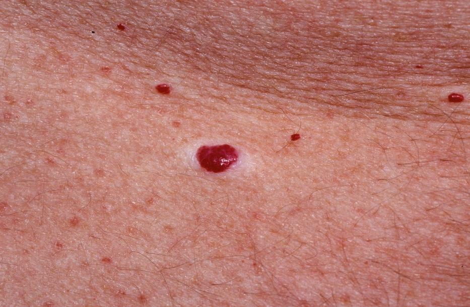 hogyan lehet eltávolítani a vörös foltokat sérülés után)