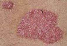 a lábak pikkelysömörének hatékony kezelése milyen hormon kezelésére pikkelysömör