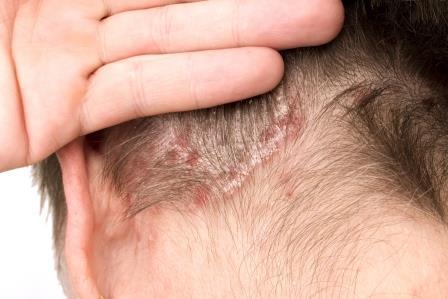 a seborrheás pikkelysömör kezelése népi gyógymódokkal a verejték vörös foltokat okoz a testen és viszket