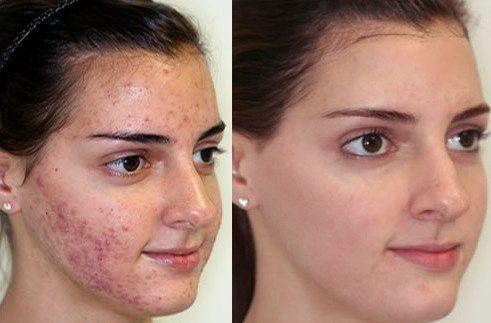 Fejbőr és hajápolás | BENU Gyógyszerkereső és online gyógyszertár