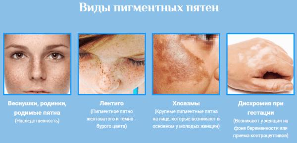 hogyan lehet megszabadulni az arcon lévő vörös pangó foltoktól