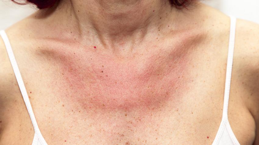 vörös foltok jelentek meg a nyakon, hámlás és viszketés)