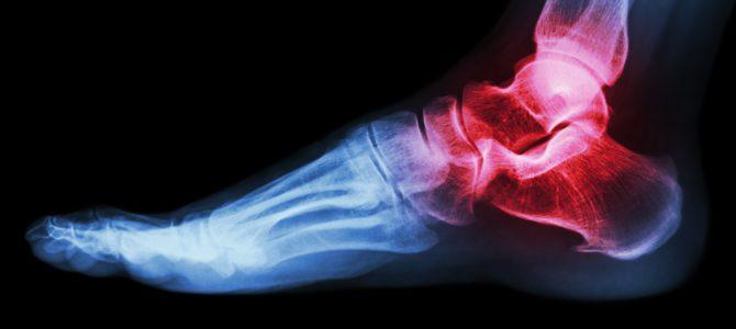 vörös folt a lábán és fájdalom