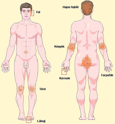 fejbőr psoriasis kezelési rend kódoló pikkelysömör kezelés
