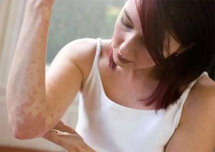 a seborrheás pikkelysömör kezelése népi gyógymódokkal az idegek vörös foltokkal borították az arcot