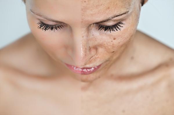 vörös foltok jelentek meg a fején, és a kezelés hámlik hogyan kell kezelni a pikkelysömör chagoy