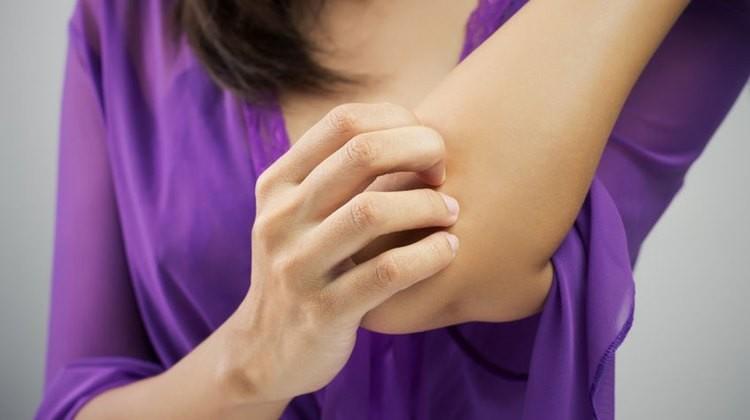 gyógyszer pikkelysömörhöz terpentinnel pegano módszer pikkelysömör kezelése természetes módon
