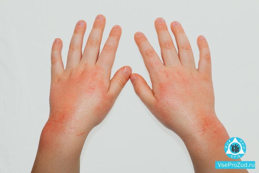vörös foltok a kezeken viszketnek és fájnak