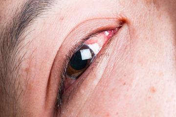 Piros folt a szemhéj szemén