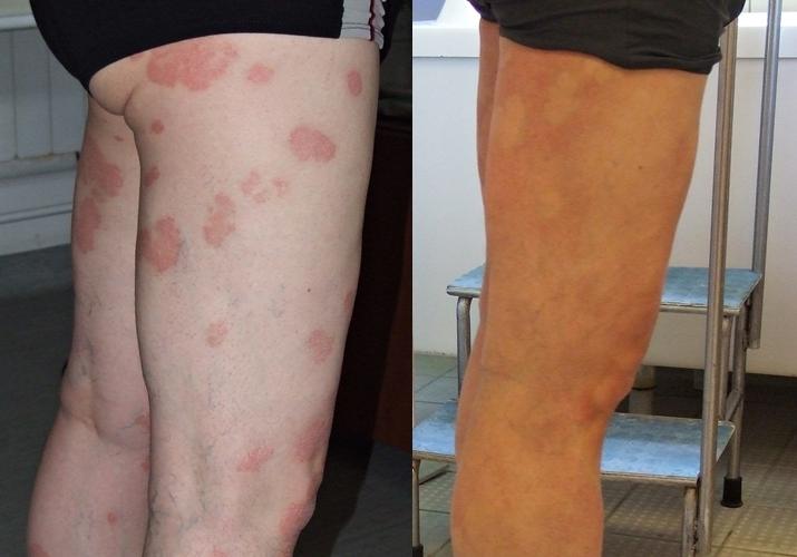 kerek piros foltok a kezeken viszketnek vörös foltok tünetei a gyomorban viszketés
