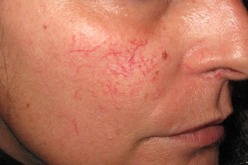 vörös foltok kezelése az arcon fotó)