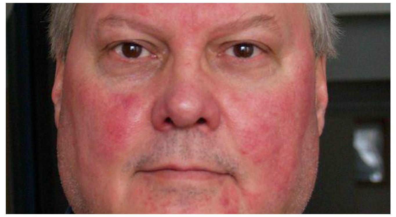 vörös foltok hámlanak le az orr közelében vörös száraz foltok az ok arcán