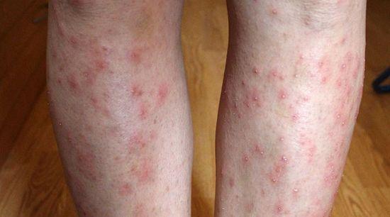 vörös foltok a lábakon és a karokon viszketnek és pelyhesek