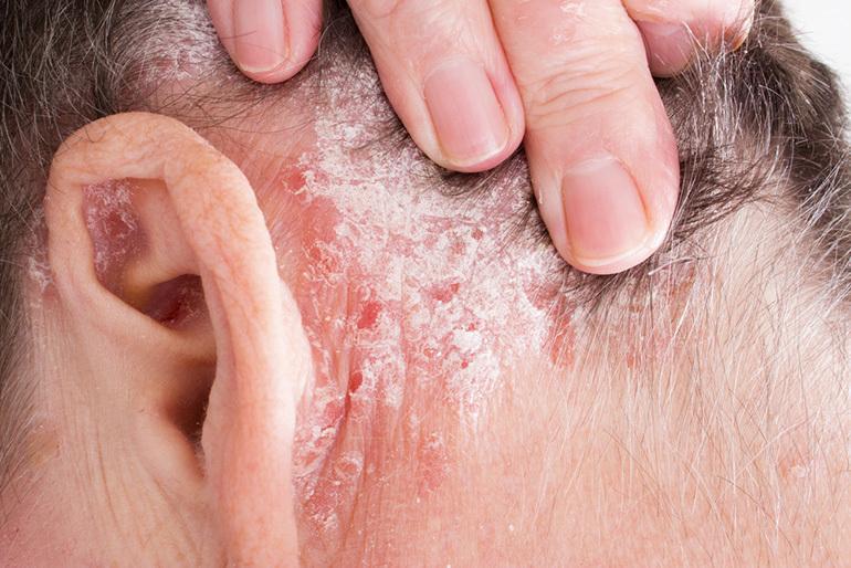 pikkelysömör tüneteinek kezelése a pikkelysömör egyéb formái)