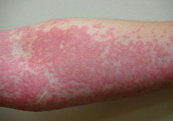 bőrbetegség vörös foltok a kezeken