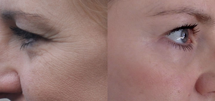 mik a retinoidok pikkelysömör kezelése)