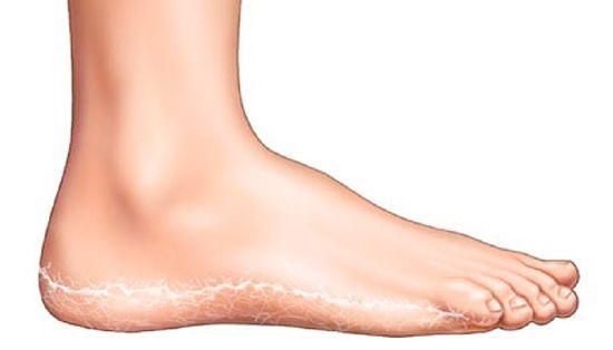 vörös foltokkal borított lábak