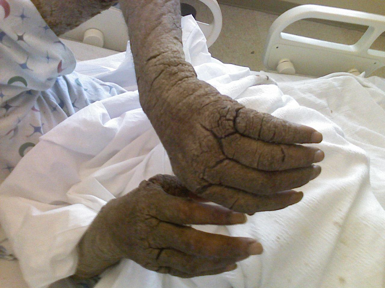 hogyan lehet vörös foltokat kenni a kezeden