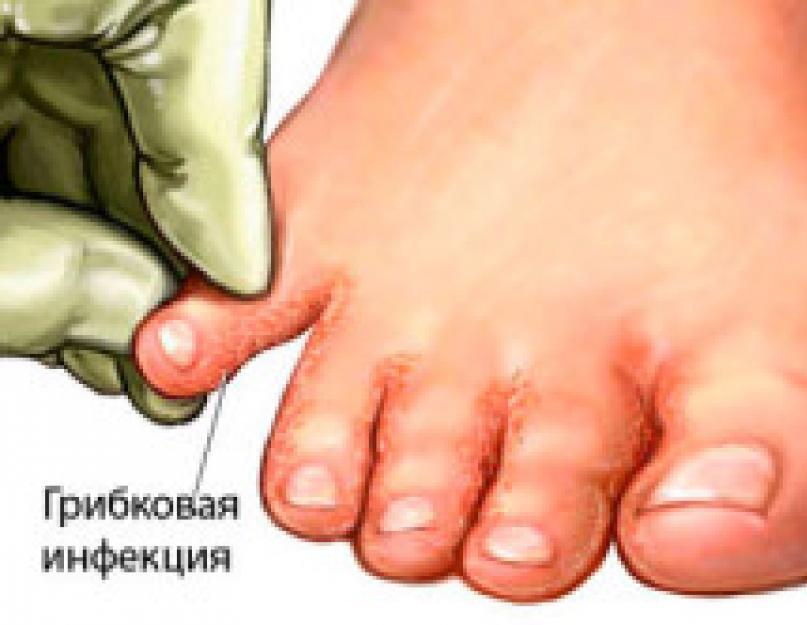 gyömbér pikkelysömörhöz gyógynövények pikkelysömör kezelése