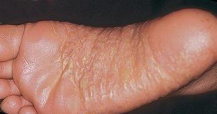 vörös foltok jelentek meg a hóna alatti bőrön vörös durva folt az arc bőrén