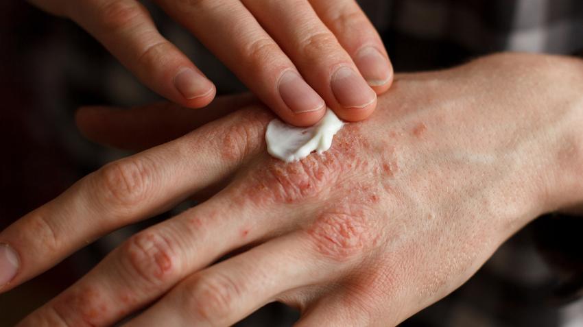 mustár pikkelysömör kezelésére vörös megemelt foltok az ujjakon