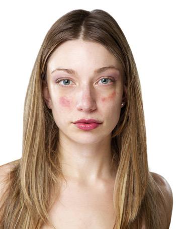 vörös foltok jelennek meg az arcán hámozódnak)