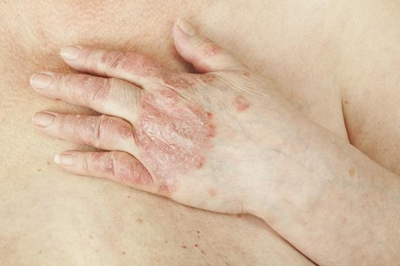 hogyan lehet pikkelysömör kezelésére rohadt ujjal)