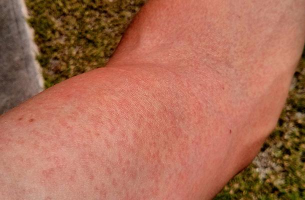 Mit jelent egy kis vörös kiütés a lábakon? - Pikkelysömör November
