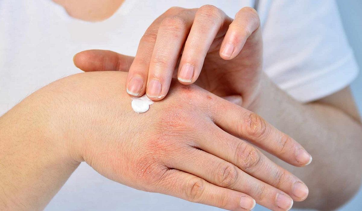 kézi bőr kezelése pikkelysömörhöz a pikkelysmr a legjobb gygyszer