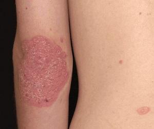 a pikkelysömör és a pikkelysömör ízületi gyulladásának komplex kezelése