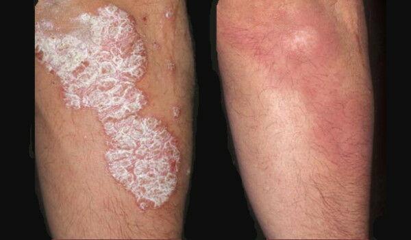 kenőcs pikkelysömör dermatitis