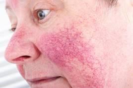 fekélyes vörös foltok az arcon hatékony gyógymód a pikkelysömörhöz