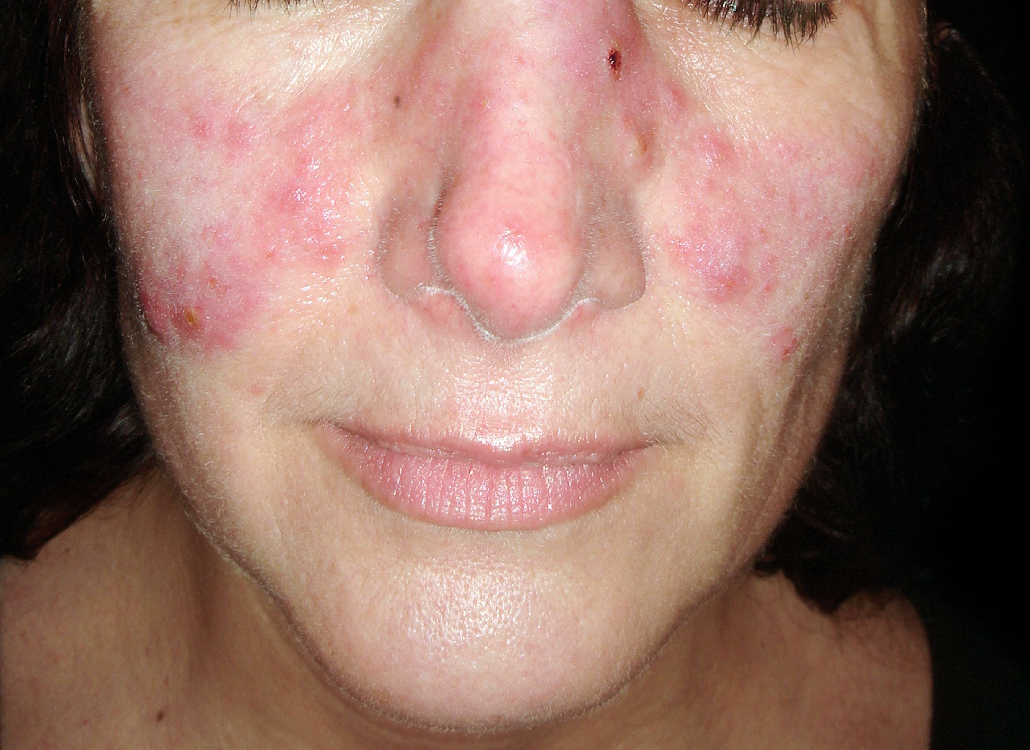 vörös foltok az arcon a streptoderma után