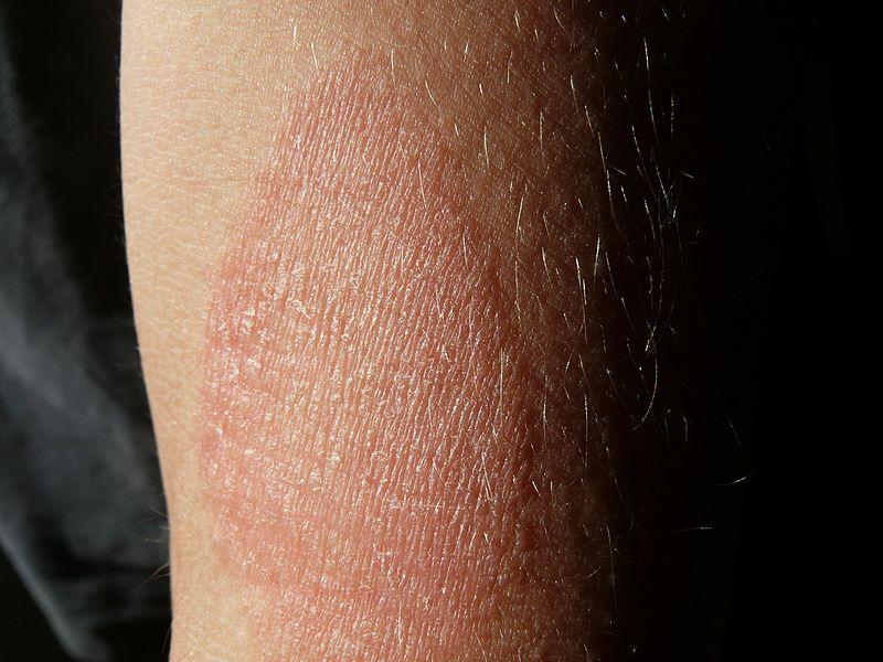 piros száraz foltok a lábakon fotó