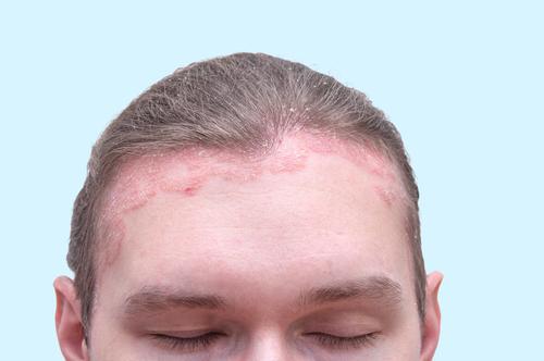 piros foltok vannak a hátán hámozódnak