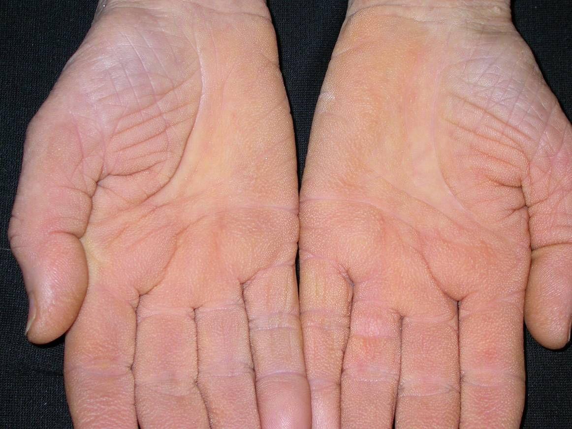 vörös vízfoltok a kezeken és az arcon kiütés a lábakon vörös foltok formájában, viszkető felnőtteknél fotó