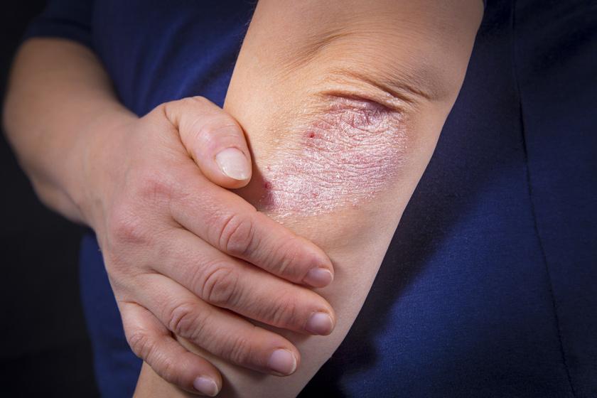az ujján piros folt viszket és fáj