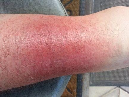 vörös vízfoltok a lábakon