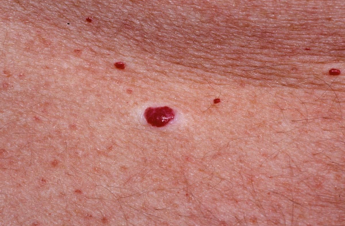 nyomja meg a bőrén egy piros foltot