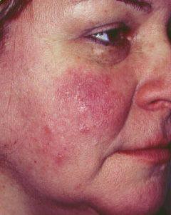 otthoni pikkelysömör kezelése az arcon